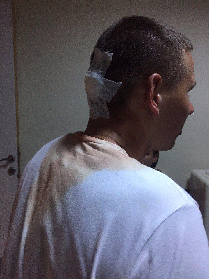 Персонал турецкого отеля жестоко избил пьяных российских туристов. Видео!